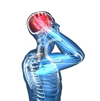 Royalty Free 3d Clipart Image of a Body With a Headache