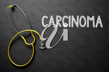 Medical Concept: Carcinoma - Text on Black Chalkboard with Yellow Stethoscope. Black Chalkboard with Carcinoma - Medical Concept. 3D Rendering.