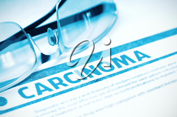 Carcinoma - Printed Diagnosis on Blue Background and Spectacles Lying on It. Medicine Concept. Blurred Image. 3D Rendering.