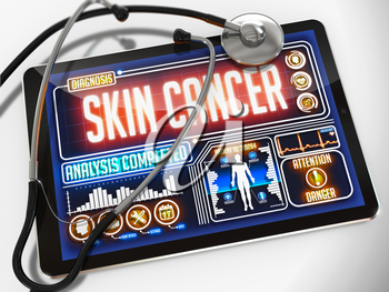 Medical Tablet with the Diagnosis of Skin Cancer on the Display and a Black Stethoscope on White Background.
