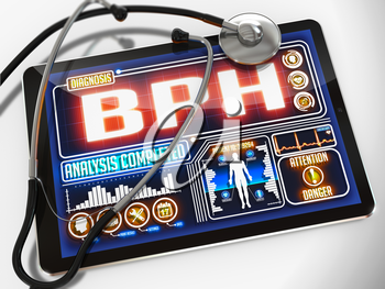 BPH  - Diagnosis on the Display of Medical Tablet and a Black Stethoscope on White Background.