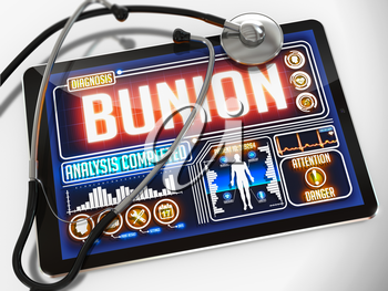 Bunion - Diagnosis on the Display of Medical Tablet and a Black Stethoscope on White Background.
