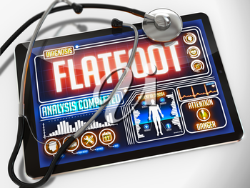 Flatfoot - Diagnosis on the Display of Medical Tablet and a Black Stethoscope on White Background.