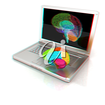 creative three-dimensional model of real human brain and scan on a digital laptop. 3d render. Anaglyph. View with red/cyan glasses to see in 3D.