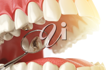 Human tooth with caries, hole and tools. Dental searching concept. Teeth or dentures. 3d illustration